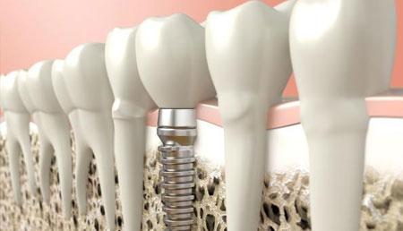 mini impinti dentali