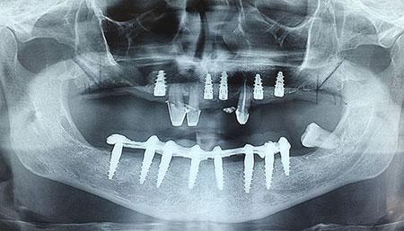 radiogragia dentale